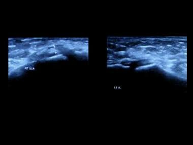 Coronal ultrasound images in the same patient as i