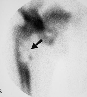 Localized isotopic bone scan in the same patient (