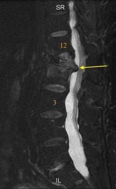 Sagittal FSE T2 weighted MRI of the lumbar spine.