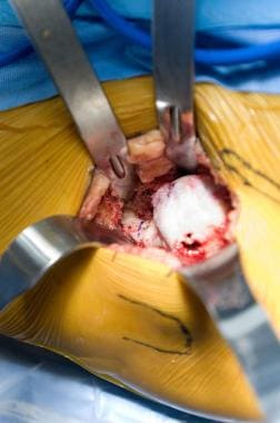 Minimally invasive total hip arthroplasty: direct