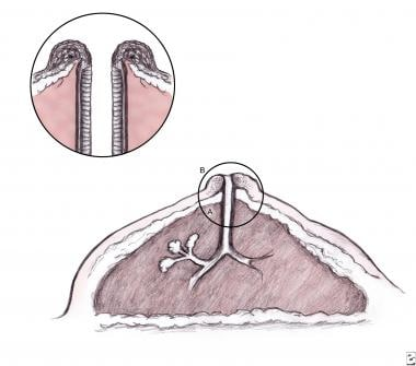 Schematic diagram of female breast depicting widel