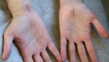 Scars from carpal tunnel release surgery.