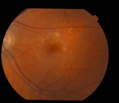 Fundus photo showing drusen in a 67-year-old woman