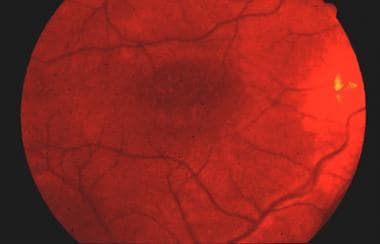 Fundus photograph of juvenile retinoschisis demons