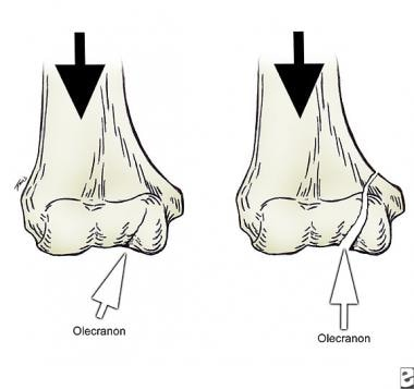 Olecranon acting as a wedge and creating medial co