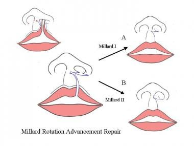 Millard repair. Two of the most common variations
