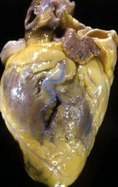 Photograph of heart of 43-year-old man demonstrati