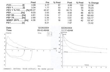 Spirometric data plotPre Bronchodilator FEV1 = 1.7