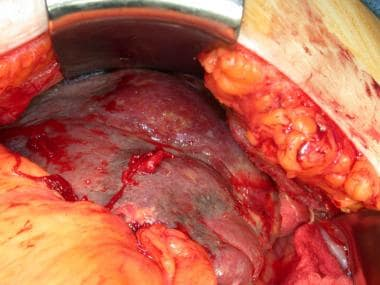 This patient has a splenic abscess due to pneumoco