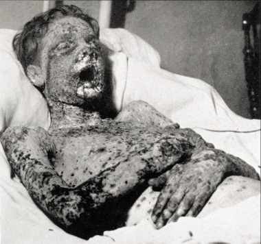 This patient with smallpox survived toxemia to suc