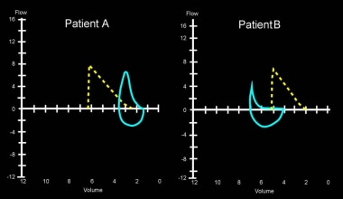 The expiratory flow volume curves of 2 patients ar