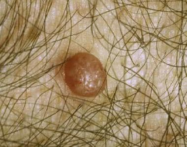 Molluscum contagiosum. Larger lesions may have sev