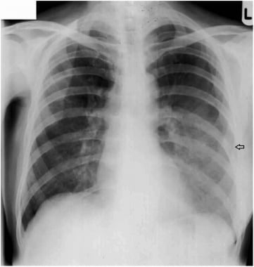Left aspiration pneumonia (black arrow) due to an