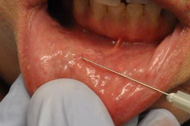 Injection of local anesthesia into lip for biopsy.