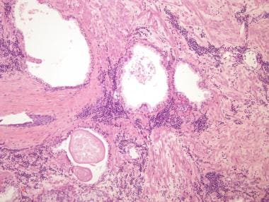 Pathology of prostate leukemia and lymphoma. Chron