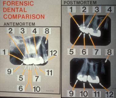 Forensic dental comparison of 12 points on 3 teeth