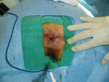 Surgical excision of hemorrhoids.