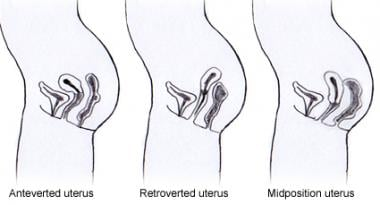 Positions of the uterus.