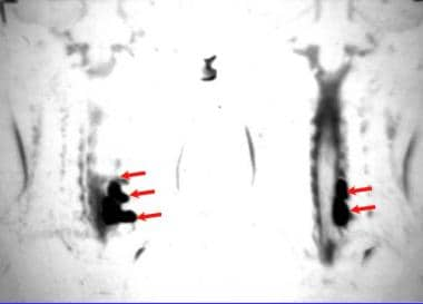 Magnetic resonance myelogram in a patient with a b