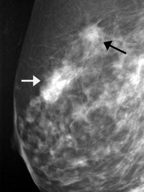 Breast cancer, ultrasonography. Mediolateral obliq