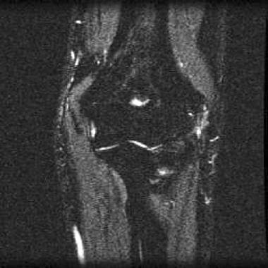 Lateral epicondylitis. Coronal short-tau inversion