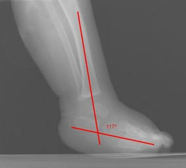 Lateral view in talipes equinovarus demonstrates a