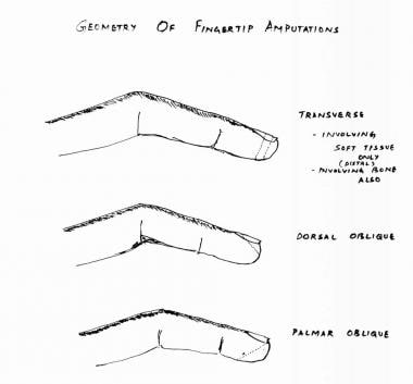 Geometry of fingertip amputations.