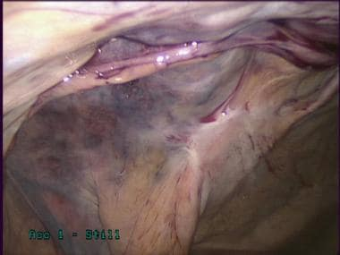 Laparoscopic inguinal hernia repair: TAPP. Closure