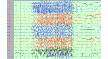 Electroencephalogram demonstrating paroxysmal fast