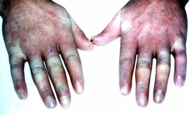 Sausage-shaped fingers in a patient with Raynaud p