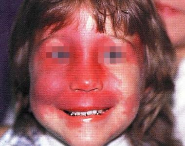 A child with Sturge-Weber syndrome with bilateral