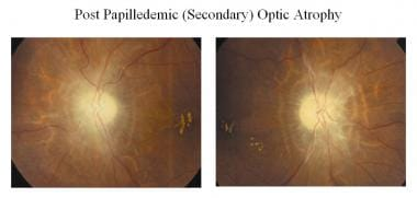 Optic atrophy following papilledema (secondary).