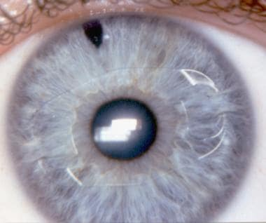 The iris claw lens for a phakic hyperopic eye, imp