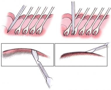 Direct brow lift. Beveling the incision.