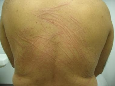 Acute urticaria associated with dermatographism.