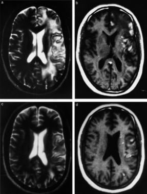 (a) T2-weighted axial MRI showing large, well-defi