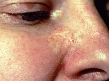 Basal Cell Carcinoma Clinical Presentation: History