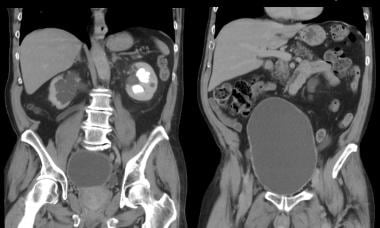 Coronal CT image with intravenous contrast, displa