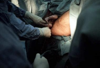 Footling breech presentation. Once the feet have d