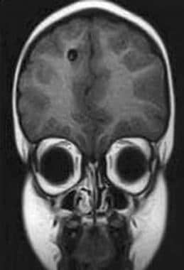 MRI of 6-year-old boy from Peru with single right