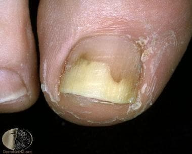 Great toe onycholysis. Courtesy of Professor Raimo