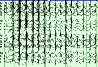Example of EEG chewing artifact.