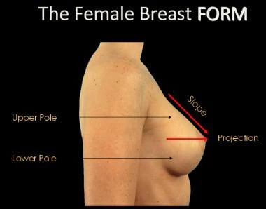 The female breast form.