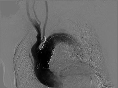 Coil embolization of left subclavian artery to pre