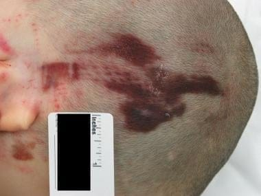 Patterned abrasion on the head due to impact by a