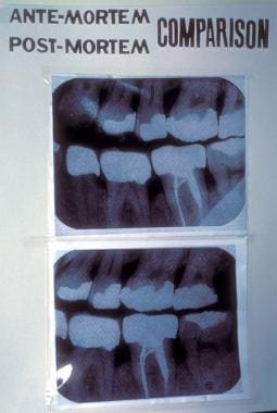 Forensic Dentistry Forensic Odontology Overview Radiology And Forensic Dentistry Dental Osteopathologies