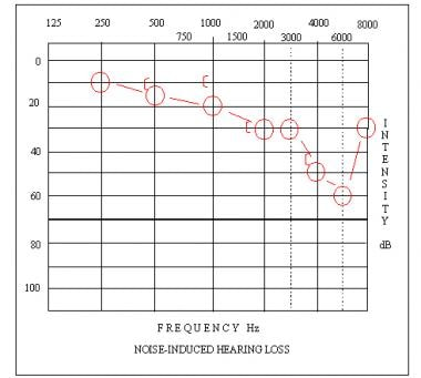 Audiogram depicting a high-frequency sensorineural