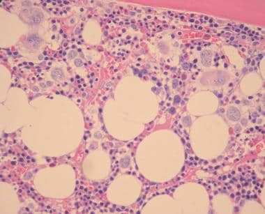 Bone marrow biopsy specimen showing erythroid hype