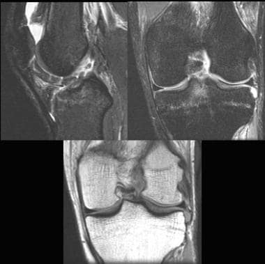 Primary signs of an ACL tear. Sagittal image (top
