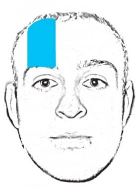 Area of anesthesia for supraorbital nerve block.